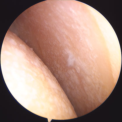 shoulder arthritis picture